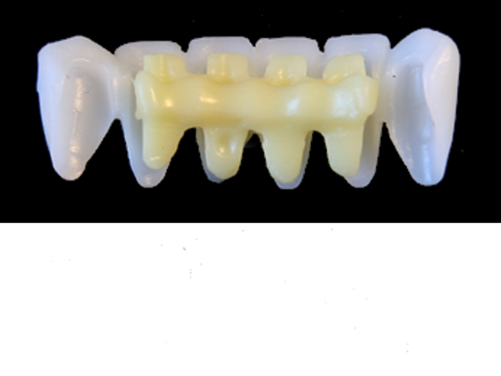 E9 F Lower Anterior 1x White Wax Veneer Bridge 33 43 Carved To Fit