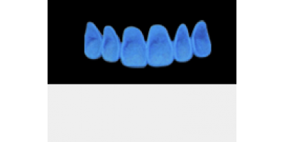 Cod.A2Lingual : 10x  wax lingual bridges,  LARGE-Wide, Tapering ovoid,  (13-23), compatible with Cod.C2Facing,TOOTH 13-23 for long-term provisionals preparation