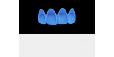 Cod.A20Lingual : 15x  wax lingual bridges,  MEDIUM, Tapering ovoid, TOOTH 12-22, compatible with Cod.C20Facing,TOOTH 12-22 for long-term provisionals preparation