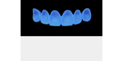 Cod.A4Lingual : 10x  wax lingual surfaces-bridges,  MEDIUM, Triangular, TOOTH 13-23, compatible with Cod.C4Facing,TOOTH 13-23, for long-term provisionals preparation