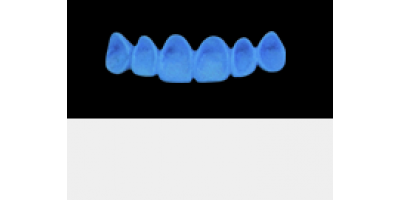 Cod.A8Lingual : 10x  wax lingual bridges,  SMALL, Tapering ovoid, TOOTH 13-23, compatible with Cod.C8Facing,TOOTH 13-23 for long-term provisionals preparation