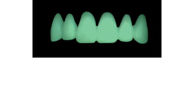 Cod.C2Facing : 10x  wax facings-bridges,  LARGE-Wide, Tapering ovoid, broad cervix, TOOTH 13-23, compatible with Cod.A2Lingual,TOOTH 13-23 for long-term provisionals preparation