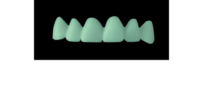 Cod.C3Facing : 10x  wax facings-bridges,  MEDIUM, Square tapering, TOOTH 13-23, compatible with Cod.A3Lingual,TOOTH 13-23 for long-term provisionals preparation
