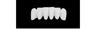 Cod.S16LOWER ANTERIOR : 10x  solid (not hollow) wax bridges, MEDIUM, Overlapping, (43-33), compatible to Cod.E16LOWER ANTERIOR (hollow), (43-33)
