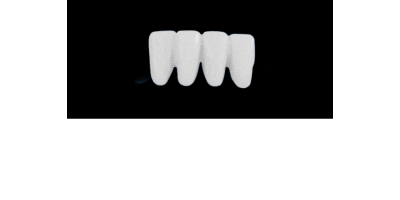 Cod.S24LOWER ANTERIOR : 10x  solid (not hollow) wax bridges, MEDIUM, Overlapping, (42-32), compatible to Cod.E24LOWER ANTERIOR (hollow), (42-32)