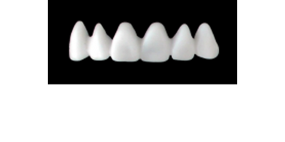 Cod.E1UPPER ANTERIOR : 10x  wax facings-bridges (hollow), LARGE, Tapering ovoid, (13-23), compatible with solid (not  hollow) wax bridges Cod.S1UPPER ANTERIOR, (13-23)