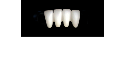 Cod.S23LOWER ANTERIOR : 10x  solid (not hollow) wax bridges, MEDIUM, Aligned, (42-32), compatible to Cod.E23LOWER ANTERIOR (hollow), (42-32)