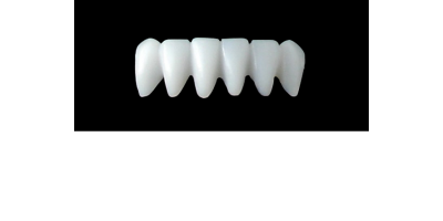 Cod.S12LOWER ANTERIOR : 10x  solid (not hollow) wax bridges, SMALL, Aligned, (43-33), compatible to Cod.E12LOWER ANTERIOR (hollow), (43-33)