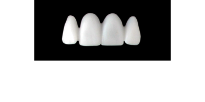 Cod.S17UPPER ANTERIOR : 15x  solid (not hollow) wax bridges, X-LARGE, Square tapering ovoid, (12-22), compatible to Cod.E17UPPER ANTERIOR (hollow), (12-22)