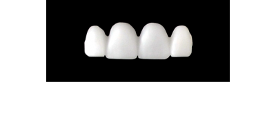 Cod.E18UPPER ANTERIOR : 15x  wax facings-bridges (hollow), MEDIUM, Square tapering, not arch, (12-22), compatible with solid (not  hollow) wax bridges Cod.S18UPPER ANTERIOR, (12-22)