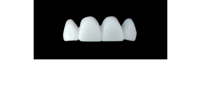 Cod.E19UPPER ANTERIOR : 15x  wax facings-bridges (hollow), MEDIUM, Square tapering, arch, (12-22), compatible with solid (not  hollow) wax bridges Cod.S19UPPER ANTERIOR, (12-22)