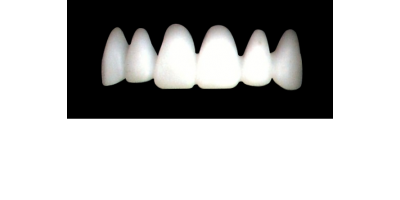 Cod.E2UPPER ANTERIOR : 10x  wax facings-bridges (hollow), LARGE-Wide, (13-23), compatible with solid (not  hollow) wax bridges Cod.S2UPPER ANTERIOR, (13-23)