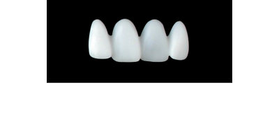 Cod.E20UPPER ANTERIOR : 15x  wax facings-bridges (hollow), MEDIUM, Tapering ovoid, overlapping, (12-22), compatible with solid (not  hollow) wax bridges Cod.S20UPPER ANTERIOR, (12-22)