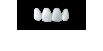 Cod.E21UPPER ANTERIOR : 15x  wax facings-bridges (hollow), SMALL, Tapering ovoid, (12-22), compatible with solid (not  hollow) wax bridges Cod.S21UPPER ANTERIOR, (12-22)