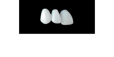 Cod.E27RIGHT: 20x wax facings-bridges, MEDIUM, Square tapering ovoid, (13-11)