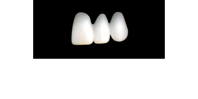 Cod.E29LEFT : 20x  wax facings-bridges, LARGE, Tapering ovoid, (21-23)