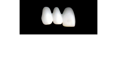 Cod.E29RIGHT: 20x wax facings-bridges, LARGE,  Tapering ovoid, (13-11)