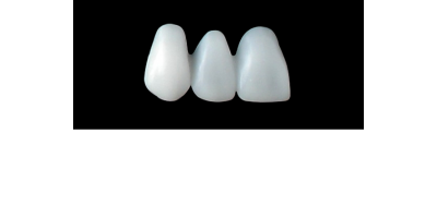 Cod.E31RIGHT: 20x  wax facings-bridges, X-LARGE,  Tapering ovoid, (13-11)