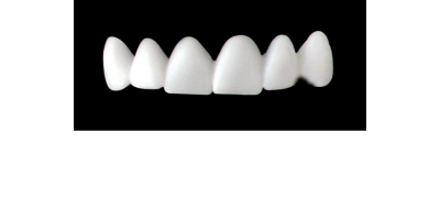 Cod.E4UPPER ANTERIOR : 10x  wax facings-bridges (hollow), MEDIUM, Triangular, (13-23), compatible with solid (not  hollow) wax bridges Cod.S4UPPER ANTERIOR, (13-23)
