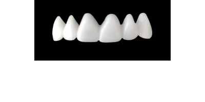 Cod.E5UPPER ANTERIOR : 10x  wax facings-bridges (hollow), MEDIUM, Tapering ovoid, (13-23), compatible with solid (not  hollow) wax bridges Cod.S5UPPER ANTERIOR, (13-23)