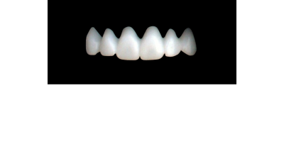 Cod.E8UPPER ANTERIOR : 10x  wax facings-bridges (hollow), SMALL, Tapering ovoid, (13-23), compatible with solid (not  hollow) wax bridges Cod.S8UPPER ANTERIOR, (13-23)